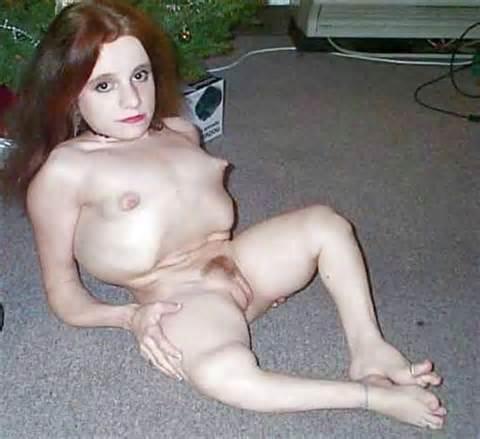 Anal fat nude paraplegic tumblr